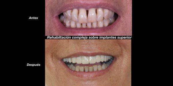 rehabilitacion-compleja-sobre-implantes