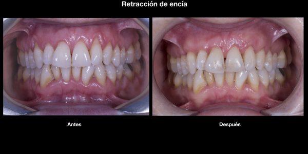 retraccion de encias periodoncia